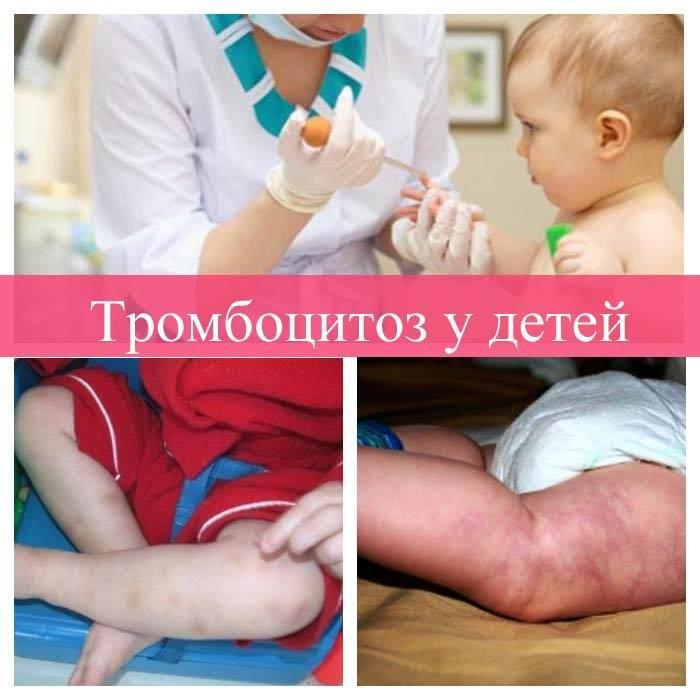 Тромбоцитоз у детей