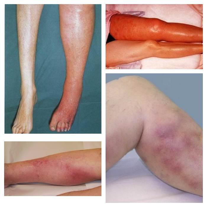 Образование тромба в ноге симптомы