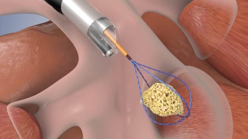 Лечение тромбов хирургическим методом