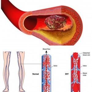 Симптомы тромба