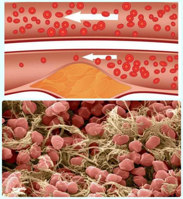 Лечение тромбофилии