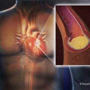 Тромб в левом желудочке сердца лечение