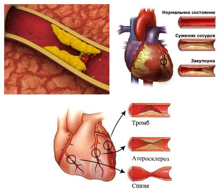 Первые признаки тромбоза нижних конечностей