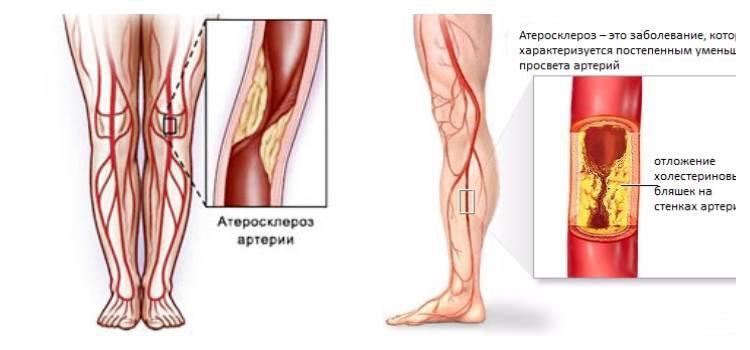 Роль тромбоцитов