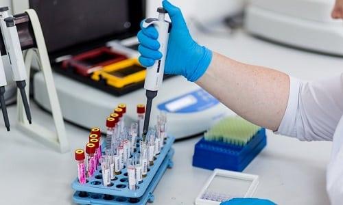 В некоторых случаях наблюдается также гематологический признак (снижение уровня гемоглобина), однако он выявляется лишь при анализе крови