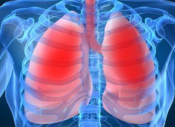 Причины и лечение хронической обструктивной болезни легких