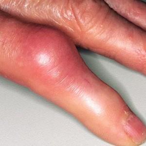 Признаки тромба в руке фото