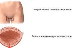 Появление зуда при хроническом хламидиозе