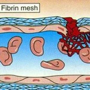 Причины образования тромбов