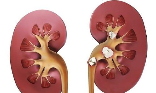 При камнях в почке жжение беспокоит на всем протяжении мочеиспускания и сочетается с интенсивным болевым синдромом