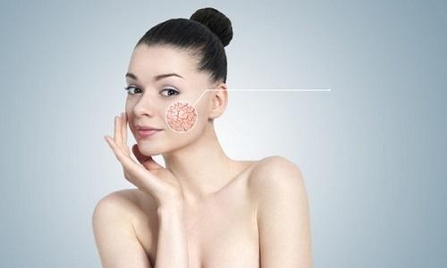 Купероз – название патологического состояния, при котором появляется сосудистая сетка на лице
