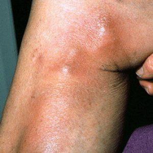 Причины тромбофлебита
