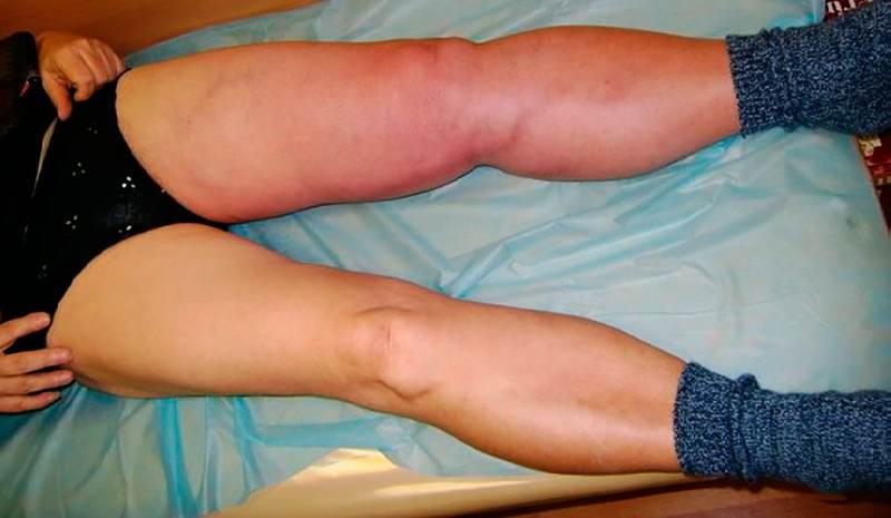 Артериальный тромбоз нижних конечностей