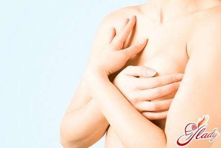 растяжки на груди почему