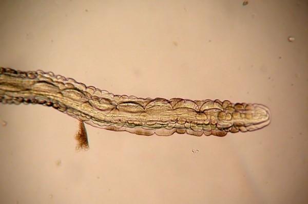 Разлиные паразиты в организме
