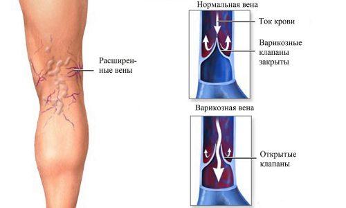 Варикоз - опасное заболевание, при котором расширяются подкожные вены нижних конечностей из-за утраты эластичности стенок сосудов, нарушается естественный отток крови