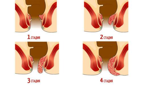 На каждой стадии развития геморроя симптомы различаются
