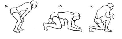 Симптомы поражения седалищного нерва