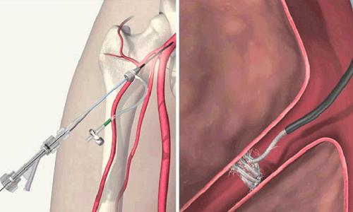 К безоперационным методам относят склеротерапию и эмболизацию вен семенного канатика, которые проводят под местной анестезией