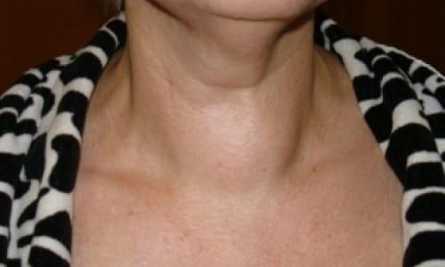 Во врачебной практике нередко обнаруживается узловая форма на фоне общего увеличения размеров щитовидки